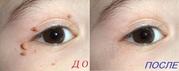 Удалить папилломы на лице без шрамов и боли в Клинике Медкрионика