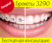 Брекеты в Киеве 3290 грн. по акции